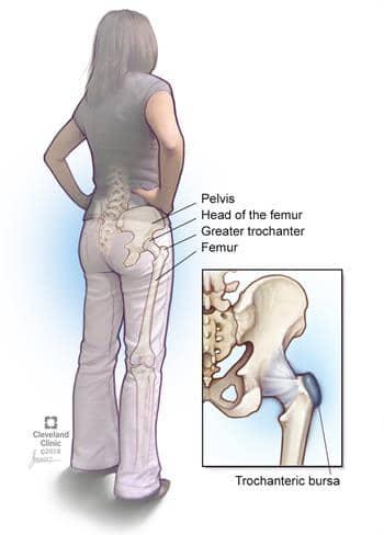 Trochanteric-Bursitis-in-woman-hip
