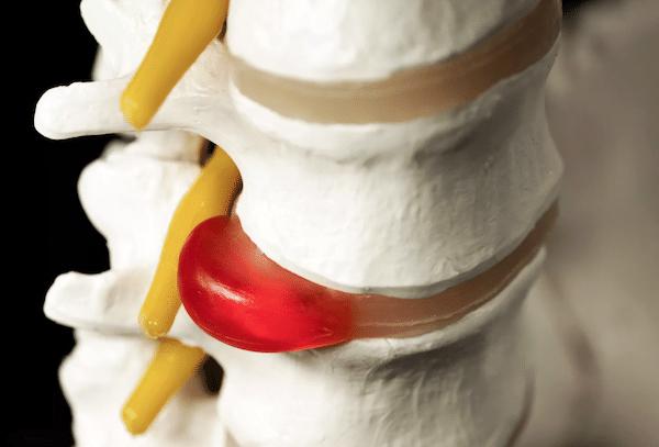 Bulging-Disc-Sciatic-Nerve-Pain