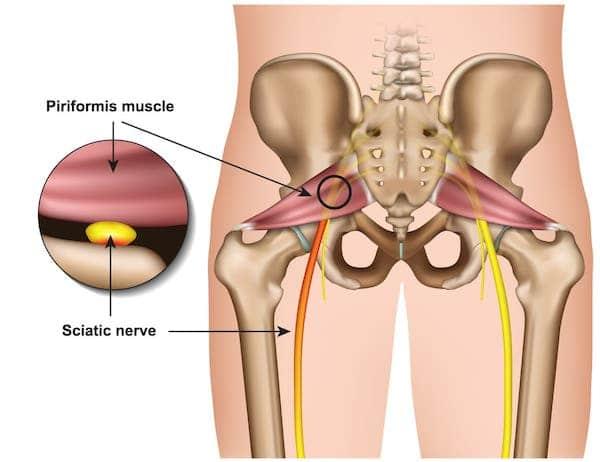 Piriforimis syndrome sciatica - diagram