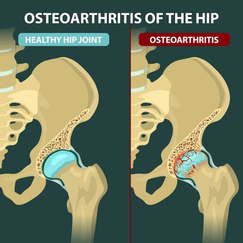 Osteoarthritis of the hip skeletal picture