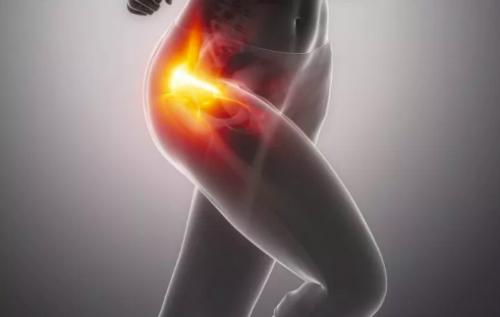 hip-pain-female-athlete